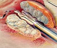 Prostata Turp Erfahrungen